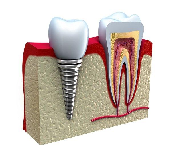 Myths About Dental Implants