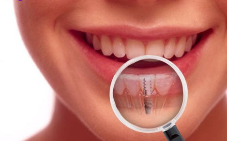 Dental Implants| The first choice when replacing teeth