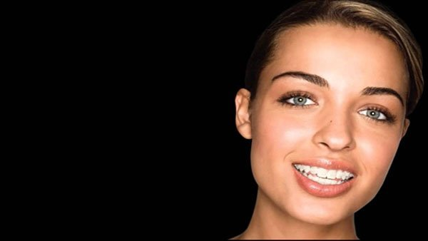 InVu Braces | Innovative Orthodontic Dentistry