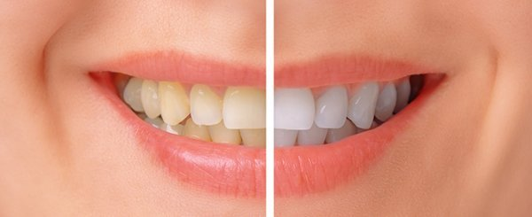 "The risks of ""at-home"" teeth whitening products."