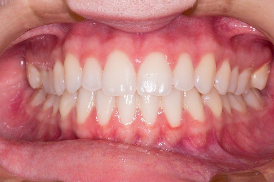 gum-care